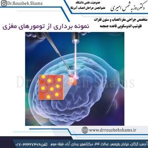 نمونه برداری از تومورهای مغزی