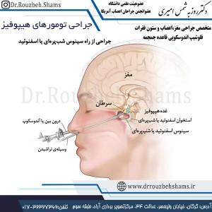 جراحی تومورهای هیپوفیز