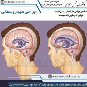 جراحی-هیدروسفالی