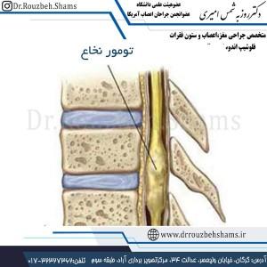 تومور نخاع