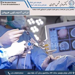 جراحی آندوسکوپی هیپوفیز