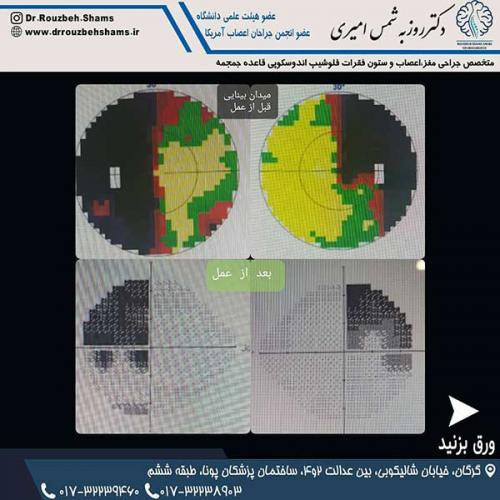 بیمار فوق آقای ۳۵ ساله با سردرد و کاهش حدت بینایی و میدان دید هستند که در بررسی اولیه دچار ماکروآدنوم(آدنوم > ۱ سانتیمتر) هیپوفیز همراه با اثر فشاری زیاد روی کیاسم بینایی بودند:تصویر یک: ام ار ای قبل از جراحی تومور بزرگ با اثر فشاری روی عصب بینایی و جابجای عروق اصلی مغزتصویر ۲: گزیده ای از جراحی و تخلیه تومور و بازسازی کف جمجمه با تکنیک فلپ پایه دار از سپتوم بینیتصویر۳: ام ار ای بیمار یک ماه و نیم بعد از جراحی نشاندهنده تخلیه کامل تومور بدون هیچ اثر فشاری روی عصب و عروقتصویر۴: مقایسه میدان بینایی بیمار قبل و بعد از جراحی (نواحی سیاه قسمتهای آسیب دیده میدان دید را نشان می دهد)تصویر ۵: ام ار ای ساژیتال بعد از عمل حفره سلای خالی از تومور و فلپ پایه دار در قاعده جمجمه جراحی در بیمارستان ۵ آذر و همانطور که در پست قبل دیدید با زحمت افراد زیادی انجام شد .