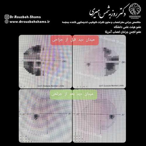 این بیمار نیز تحت جراحی آندوسکوپی هیپوفیز از راه بینی در بیمارستان ۵ آذر قرار گرفت:تصویر اول: ماکرو ادنوم هیپوفیز با اثر فشاری روی کیاسم بینایی و در گیری نسبی سینوس کاورنوستصویر دوم: مقایسه قبل و بعد از جراحی که ملاحظه میکنید تومور بصورت کامل تخلیه شده و عصب بینای کاملا آزاد شده استتصویر سوم: مقایسه میدان بینای قبل و پس از جراحی که نواحی سیاه رنگ نشاندهنده میدان بینایی مختل میباشد و میدان دید بیمارفقط بصورت لوله ایی بوده و اطراف را نمی دید ولی بعد از جراحی دید بیمار به حالت کاملا نرمال بازگشته است.با توجه به حفظ غده هیپوفیز، عملکرد آن کاملا به حالت نرمال بازگشته و بیمار بدون نیاز به درمان جایگرین عملکرد هیپوفیز به زندگی طبیعی بازگشته است.