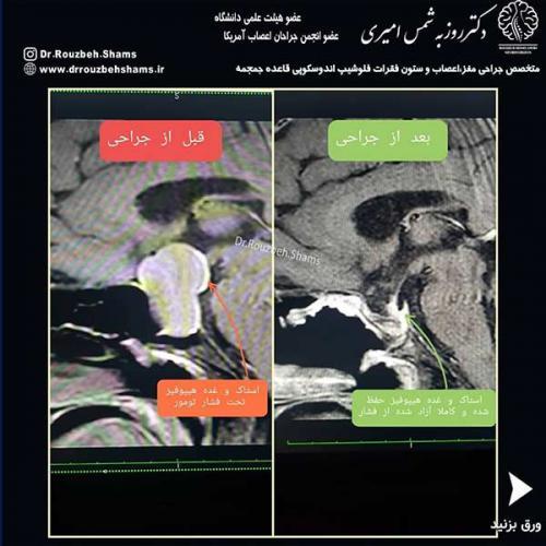 ◀️در ادامه بحث تومورهای هیپوفیز بیمار فوق خانم میانسالی هستند که به دنبال کاهش بینایی در بررسی همکاران چشم پزشک متوجه ادم پاپی(تورم سر عصب بینایی) و کاهش میدان بینایی شدند و جهت بررسی بیشتر ارجاع شدند:1️⃣تصویر اول: ماکروآدنوم(ادنوم بزرگتر از یک سانتی متر) بزرگ با فشار روی کیاسم بینایی و غده هیپوفیز و ساقهبیمار تحت عمل جراحی آندوسکوپیک از راه بینی قرار گرفت و تومور به صورت کامل با حفظ غده هیپوفیز و ساقه آن تخلیه شد و کف حفره سلا با فلاپ پدیکولیت از سپتوم بینی باز سازی شد.2️⃣(تصویر دوم: ام ار آی سه ماه پس از جراحی)3️⃣تصویر سوم: قسمت بالای تصویر میدان بینایی بیمار قبل از جراحی را نشان می دهد که بیانگر اختلال بینایی در دو طرف میدان دید می باشد و قسمت پایینی تصویر نشاندهنده میدان دید سه ماه پس از جراحی است که بیانگر بهبودی کامل است.4️⃣یکی از مهمترین نکات در جراحی تومورهای هیپوفیز حفظ غده نرمال و حفظ عملکرد آن است همانطور که در کلیپ مشاهده می کنید بیمار بیان می کند که هیچ دارویی مصرف نمی کند که بیانگر عملکرد نرمال هیپوفیز است یعنی نیازمند جایگزینی عملکرد هیپوفیز با دارو نمی باشد.ملاحظه می فرمایید که چنین جراحی های پیشرفته قائده جمجمه از صفر تا صد (از تشخیص تا درمان) با نتایج عالی در استان قابل انجام است.تشکر ویژه از همکاران فوق تخصص غدد که در بررسی های قبل از عمل و پیگیری های پس عمل در درمان این بیماران همکاری و همیاری عالی دارند.