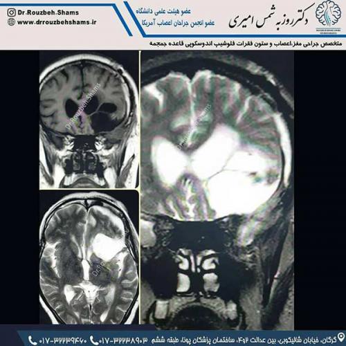 در ادامه جراحی تومورهای مغزی مورد فوق خانمی ۶۵ ساله بودند که با اختلال تکلم، ضعف در نیمه راست بدن، اختلال در راه رفتن، سردرد مزمن و در نهایت تشنج مراجعه کردند.همانطور که در تصاویر قبل از جراحی ملاحظه می فرمایید یک تومور بسیار بزرگ در نیمکره چپ در مجاورت شریان مغزی قدامی(ACA)و درگیری شریان میانی مغز(MCA) و با اثر فشاری بارز بر ناحیه بروکا (مرکز تکلم) دیده می شود.به لطف خدا و همکاران خوب بیهوشی و پرسنل زحمتکش اتاق عمل ۵ آذر، عمل جراحی با موفقیت انجام شد و تومور بصورت کامل تخلیه شد و اختلال تکلم و ضعف اندام بیمار نیز بر طرف شد و همانطور که ملاحظه می فرمایید در تصاویر ام آر ای ۳ ماه بعد از جراحی بیمار جای خالی تومور با مایع مغزی نخاعی پر شده است.لازم به ذکر است که چنین جراحی هایی نیازمند مراقبت پرستاری مناسب در آی سی یو و بخش می باشد و خوشبختانه پرسنل عزیز بیمارستان ۵ آذر در این راستا کاملا حرفه ای و زحمتکش هستند
