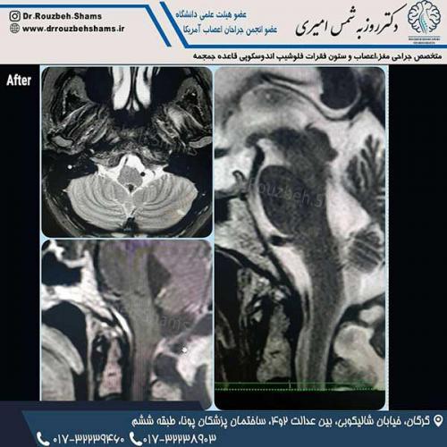 """بیمار خانم چهل و پنج ساله ای هستند که با درد شدید گردن و اندام فوقانی راست، اختلال در راه رفتن و کاهش توان عضلانی اندام فوقانی راست مراجعه کردند.همانطور که در ام آر آی قبل از عمل ملاحظه می کنید تومور بزرگ در ناحیه فورامن مگنوم (قائده جمجمه) با اثر فشاری قابل توجه بر روی ساقه مغز مشهود است و تومور در مجاورت شریانهای ورتبرال دو طرف قرار گرفته است.بیمار را در بیمارستان ۵ آذر گرگان با استفاده از نورومونیتورینگ جراحی کردم و به لطف خدا و همیاری تیم خوب اتاق عمل، تومور بصورت کامل تخلیه شد. (عکس سوم سه ماه پس از جراحی)و پس از مراقبتهای خوب بعد از عمل در آی سی یو و بخش، بیمار با بهبودی کامل شرایط قبل از عمل مرخص شد و به آغوش خانواده برگشت.جواب پاتولوژی """"مننژیوما"""" گرید یک بود که با توجه به برداشت کامل تومور نیازی هم به رادیوتراپی نخواهد داشت."""
