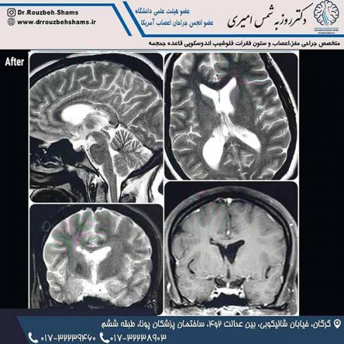 """بیمار فوق خانم ۳۵ ساله ایی بودند که با شکایت سردرد و تهوع و استفراغ و خواب آلودگی و تاری دید مراجعه کردند.در تصویر اول مشاهده می کنید که یک تومور بزرگ اینتراونتریکولار مشهود است که باعث هیدروسفالی و به طبع آن فتق تانسیل مخچه شده است(tonsilar herniation)بیمار در بیمارستان ۵آذر تحت عمل جراحی میکروسکوپیک ترانس کورتیکال از یک برش کوچک روی کورتکس فرونتال راست به طول ۲ سانتی متر قرار گرفت و تومور به صورت کامل تخلیه شد و هیدروسفالی بیمار و تانسیلار هرنیشن بیمار کاملا بر طرف شد.( تصویر سوم ام آر آی ۶ماه بعد از جراحی) و بیمار با بهبودی کامل شرایط قبل از عمل مرخص شده و به زندگی عادی برگشت.پ ن ۱:جواب پاتولوژی """"سنترال نوروسایتوما"""" که با توجه به تخلیه کامل تومور نیاز به رادیوتراپی هم ندارد."""
