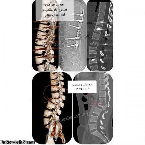 شکستگی های ستون فقرات - بیمار خانم جوانی بوده است که به دنبال سقوط از ارتفاع ۳ متری بر روی هر دو پا دچار شکستگی در رفتگی شدید مهره دوم کمری و آسیب نخاع بصورت فلج حرکتی و عدم کنترل ادرار و مدفوع شده بود. همچنین دچار شکستی مچ و ساق اندام تحتانی راست نیز بود.برای بیمار بصورت اورژانسی در ۲۴ ساعت اول پذیرش جراحی اصلاح شکستگی، برداشت فشار از روی نخاع و ترمیم پارگی وسیع پرده نخاع را در بیمارستان پنج آذر، انجام دادم و در روزهای آتی نیز جراحی اورتوپدی توسط همکاران محترم اورتوپدی انجام شد.پس از ترخیص تحت فیزیوتراپی و کاردرمانی فعال در مرکز جامع توانبخشی پارس توان قرار گرفت.همانطور که ملاحظه می کنید بعد از یک سال به راحتی راه می رود و در حال برنامه ریزی برای شروع زندگی مشترک می باشد(نتیجه : بیمارستان خوب، جراحی خوب، کار تیمی، پیگری و توانبخشی مناسب و انگیزه بالا = پاسخ به درمان و بهبودی)