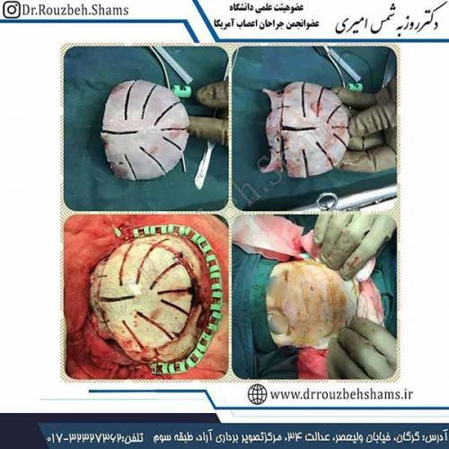 کرانیوسینوستوزیس - تصاویر مربوط به یک شیرخوار ۶ ماهه است که به دلیل بدشکلی جمجمه (بصورت تیز شدن پیشانی) ارجاع شده بود. در بررسی انجام شده شیرخوار دچار کرانیوسینوستوزیس سوچر متوپیک بود.( جوش خوردن پیش از موعد درز پیشانی)همانطور که در تصاویر مراحل جراحی را مشاهده می کنید ابتدا استخوان پیشانی و orbital rim (حاشیه فوقانی کره چشمها) برداشته شد و بعد از شکل دهی و ایجاد درزهای لازم مجددا جایگذاری شد.در تصویر اول نتیجه خوب جراحی در دو هفته بعد از عمل کاملا مشخص است. البته نتیجه اصلی در طی زمان و با رشد دور سر کودک خواهد بود